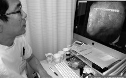 AI画像診断支援プログラム本格導入へ